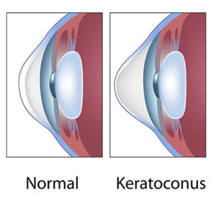 Keratoconus Fort Worth | Corneal Dystrophy Grapevine