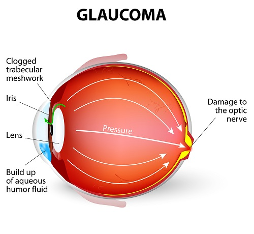Glaucoma Fort Worth
